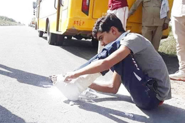 Migrant worker pic goes viral for cutting plaster to walk home despite fracture