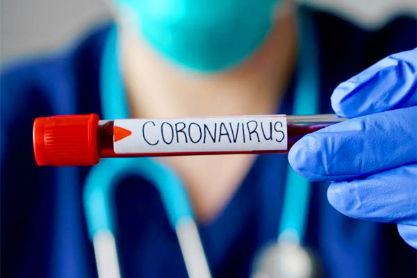 India records 55,097 new coronavirus COVID-19 cases Total cases crosses 27 lakh mark